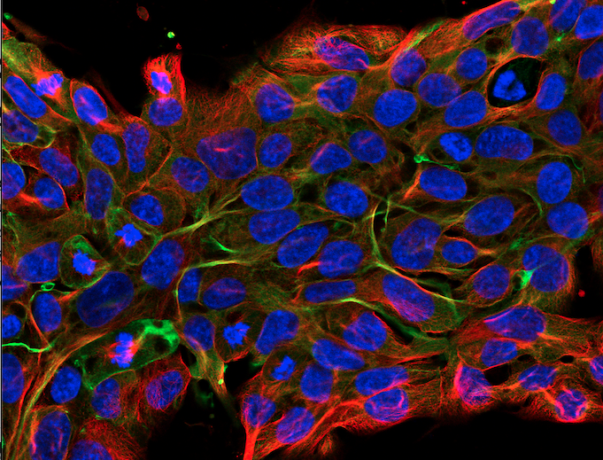 Fotografi av en mängd celler i förstoring